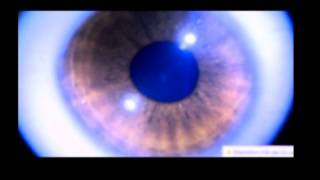 Dos anéis causam olhos redor ao