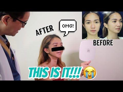 NOSE JOB HEALING PROCESS AND REVEAL!!! (1 WEEK AFTER SURGERY) | Angel Dei