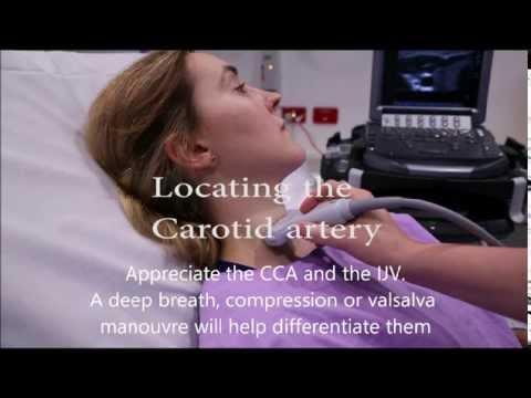 Carotid flow measurement video