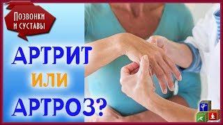Как отличить АРТРИТ И АРТРОЗ? В чем разница между этими болезнями суставов?