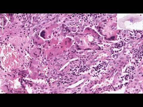 Histopathology - Granulation Tissue