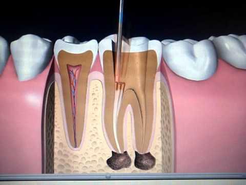Endodoncia, Poste y Corona   Dental Cozumel