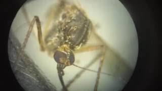 Как выглядит комар под микроскопом