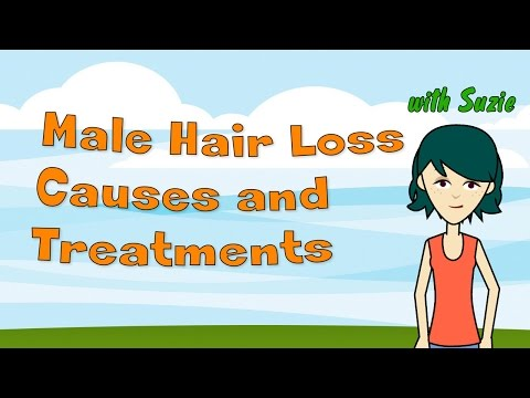 Male Hair Loss Causes and Treatments – Understanding Male Pattern Baldness and What You Can Do