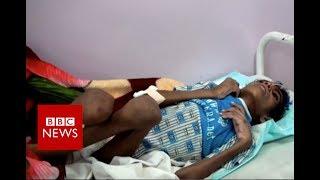 Inside Yemen  The hidden reality   BBC News