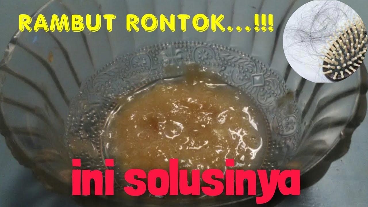 Cara Ampuh Mengatasi Rambut Rontok - YouTube
