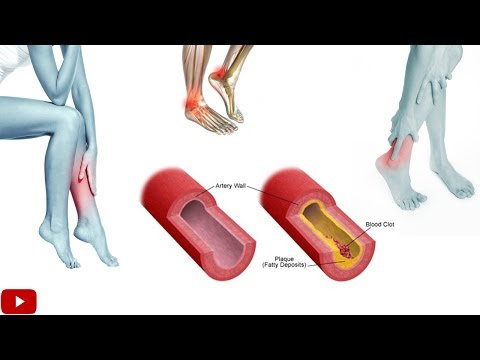 Exercises For Improving Blood Circulation In Legs - By Dr Sam Robbins