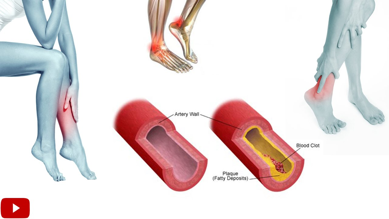 Exercises For Improving Blood Circulation In Legs Youtube
