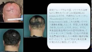 円形脱毛症は5ヶ月で完全回復!! thumbnail