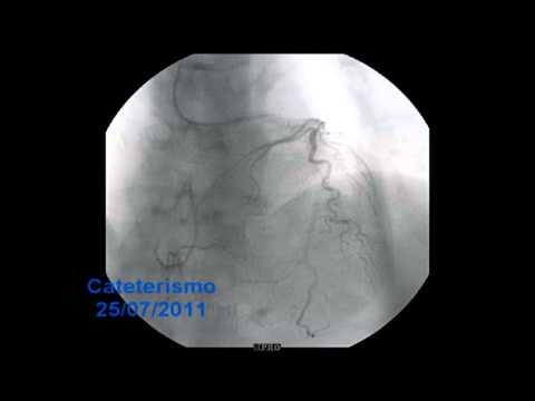 Exame de cateterismo cardiaco