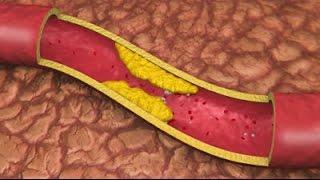 Best Foods For Blocked Arteries