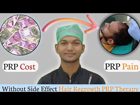 hair-loss-treatment।prp-therapy-cost-and-pain।side-effect।-sonu-kumar-mishra।