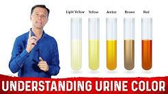 hqdefault - Diabetes Urine Crystals