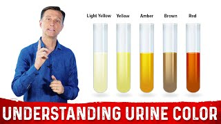 What Urine Color Indicates About Your Body