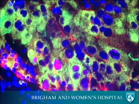 Nanoparticles for Cancer Treatment Video - Brigham and Women's Hospital