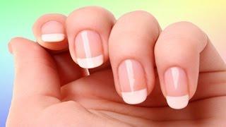 reméde efficace pour les ongles