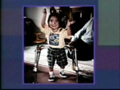 Fetal Alcohol Syndrome 06 / FAS FASD Educational Training Video