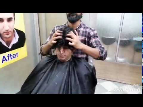 |-non-surgical-hair-replacement-|-|00923004368792-|-by|-new-hair-image-|