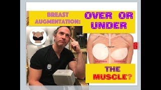 Breast augmentation: over or under the muscle?