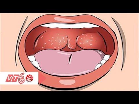 Phòng ngừa ung thư vòm họng | VTC