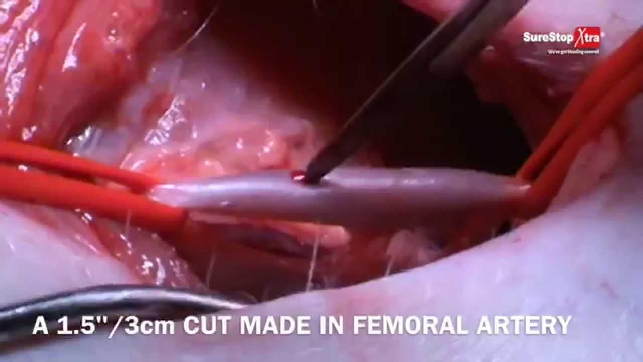 surestop xtra hemostatic gauze femoral artery cut - youtube, Cephalic Vein