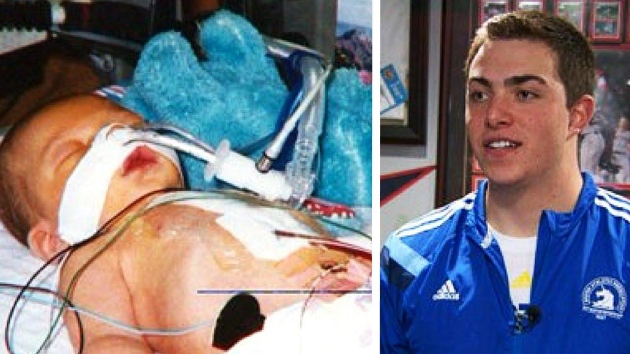 Doktori su roditeljima rekli da njihov sin neće doživjeti svoj prvi rođendan. 20 godina kasnije...