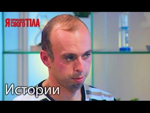Игорь Зинченко провели пластическую операцию полового органа