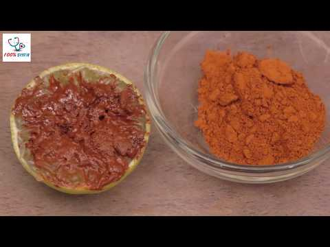 Piles Home Remedy - बवासीर के घरेलू नुस्खे - Piles Treatment By Ayurvedic Gharelu Nuskhe In Hindi