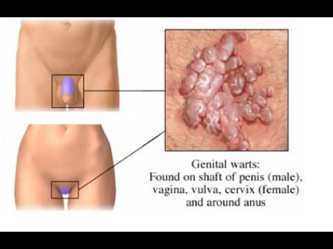 genital condylomata