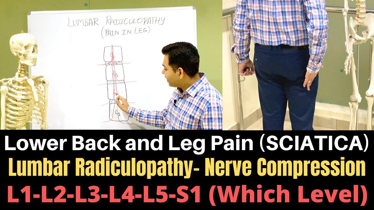 Lumbar Radiculopathy  Sciatica  Lumbar Nerve Root