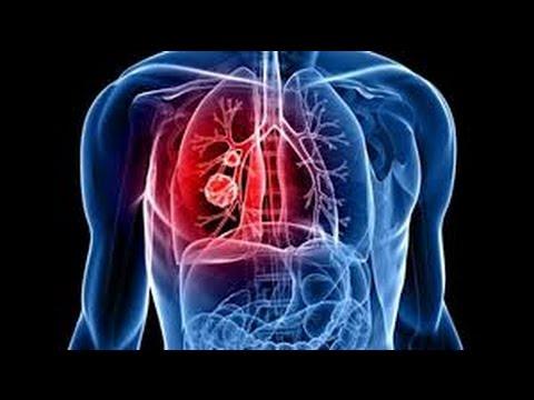 cancer du poumon dyspnée essoufflement