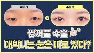 #쌍꺼풀수술 대박나는 눈은 따로있습니다. [김성훈성형외…