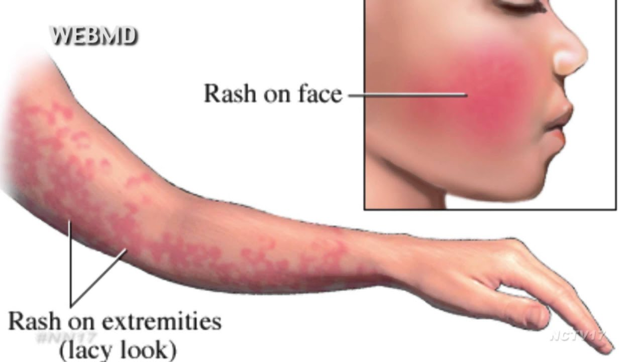 Skin Rash: Pictures, Causes, Types, and Treatments