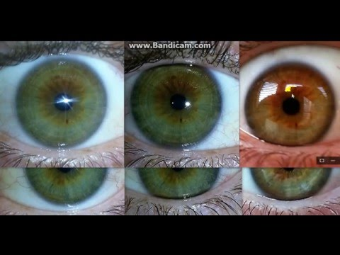 Iridology lesson, I changed my eyes from brown to blue using fruit and herbs