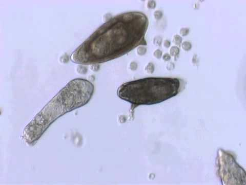 YouTube   Schistosoma mansoni mother sporocyst and eggs