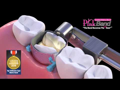 PinkBand® Silicone Coated Dental Matrix Bands