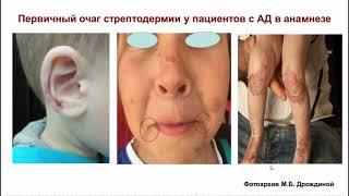 Инфицированные дерматозы
