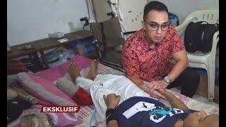 MAKANAN PATAH TULANG KAKI - MAKANAN WAJIB SAAT PENGOBATAN PATAH TULANG   BAHRUL EFENDI WELCOME TO...