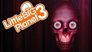 HOSPITAL VISIT! | Little Big Planet 3 Multiplayer (152)