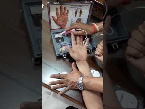 Hand akupuntur seri 3