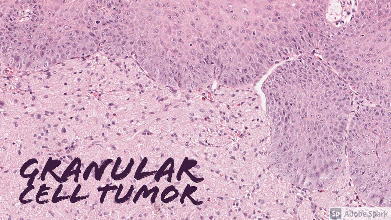 neuroendokrin rák biomarker)