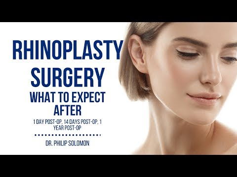 What to Expect After Rhinoplasty Surgery | Dr. Philip Solomon