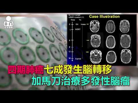 20180705四期肺癌病人 七成發生腦轉移腫瘤