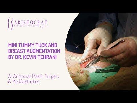 Mini Tummy Tuck and Breast Augmentation by Dr. Kevin Tehrani