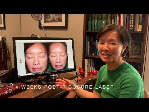 PICOSURE LASER TREATMENT FOR PIGMENTATION WITH DR. PHILIP SOLOMON, TORONTO