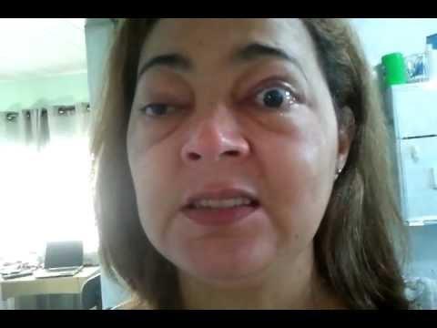 Oftalmopatia de graves por Jane Moura