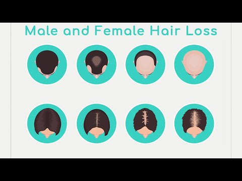 Hormone Replacement And Hair Loss