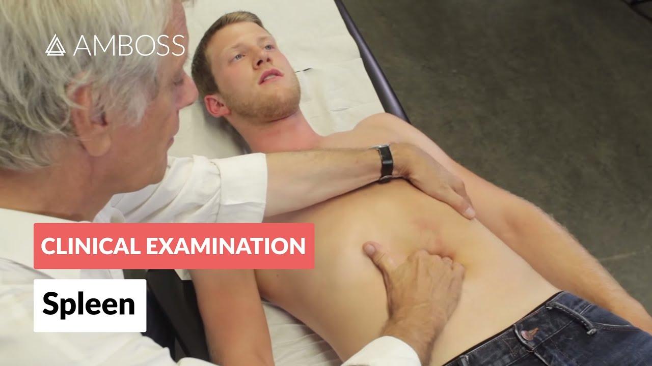 Examination Of The Spleen Clinical Examination Amboss Youtube
