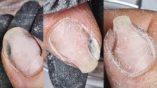 Что с НОГТЕМ продолжение истории ногтей с онихолизисом