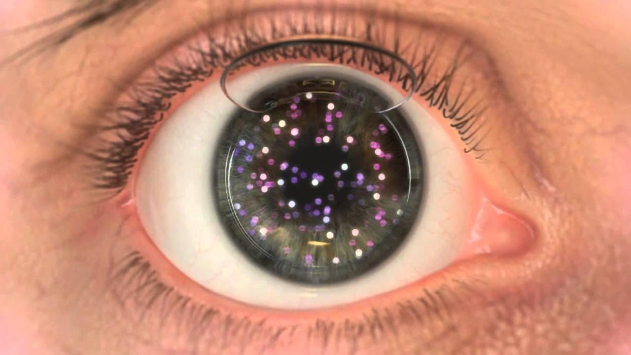 mit kell letörölni a látás érdekében